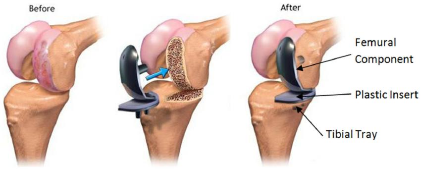 Μονοδιαμερισματική αρθροπλαστική γόνατος