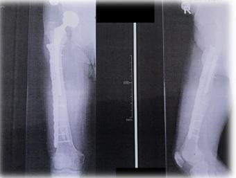 κατάγματα μακρών οστών 1
