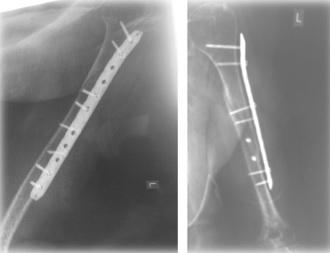 κατάγματα μακρών οστών 2