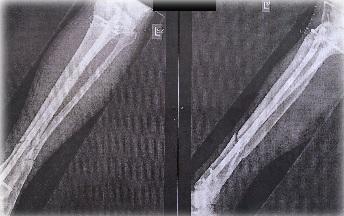 κατάγματα μακρών οστών 3