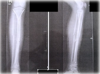 κατάγματα μακρών οστών 4